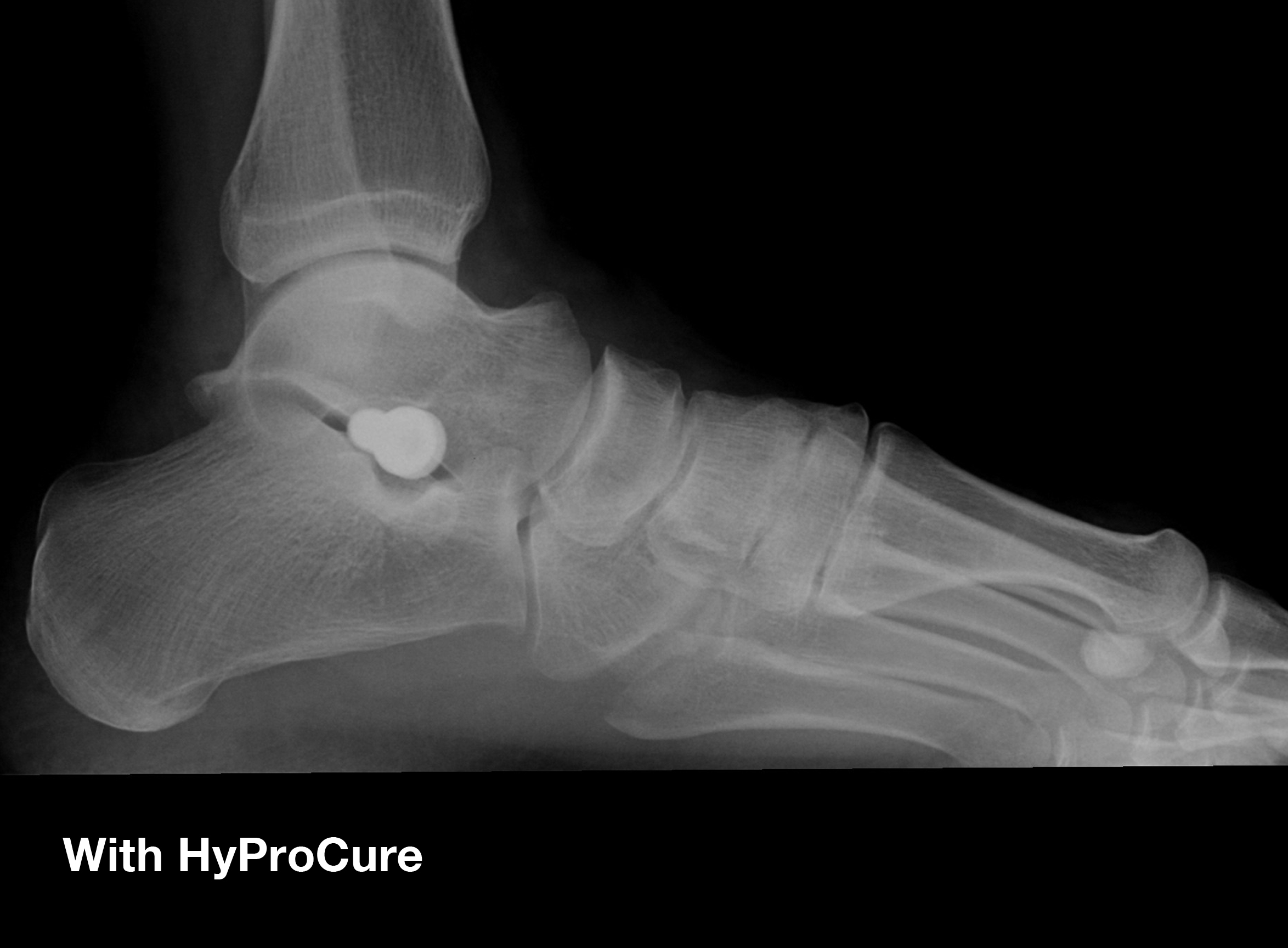 HyProCure® is the perfect solution when arch supports are not enough, and reconstruction surgery is too aggressive.
